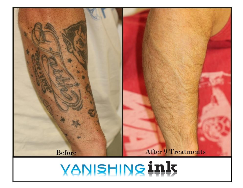 Vanishing Ink Tattoo Removal Clinic