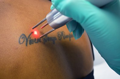 Premium Tattoo Removal