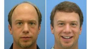 Tango Hair Loss Clinic