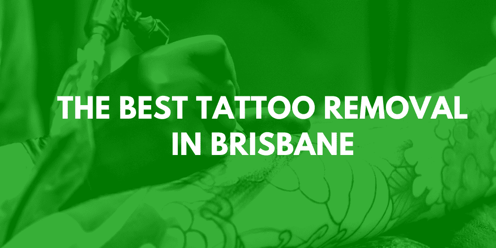 best tattoo removal brisbane