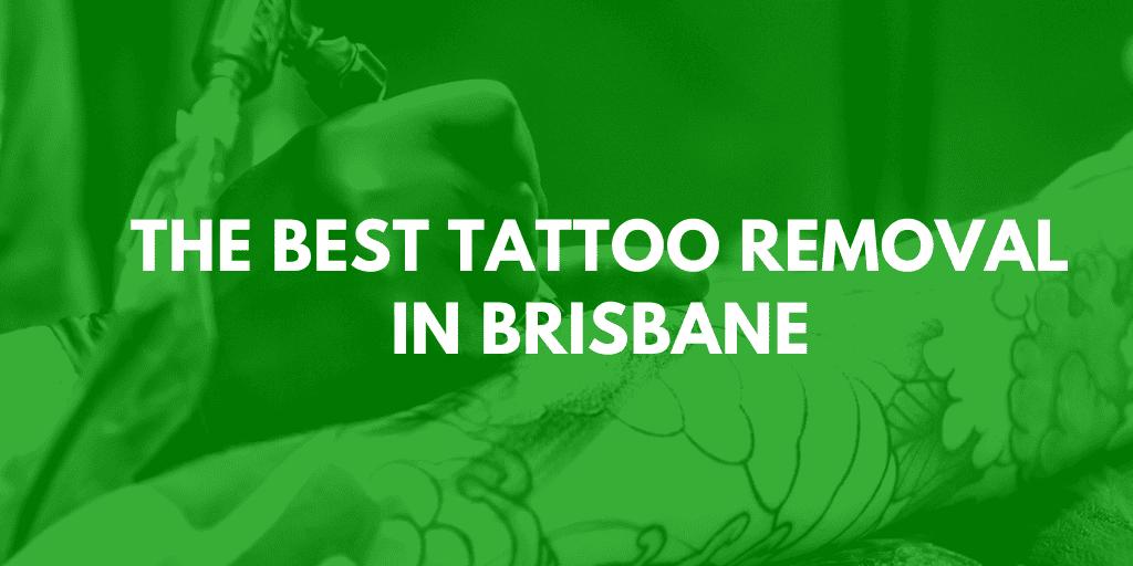 best tattoo removal brisbane