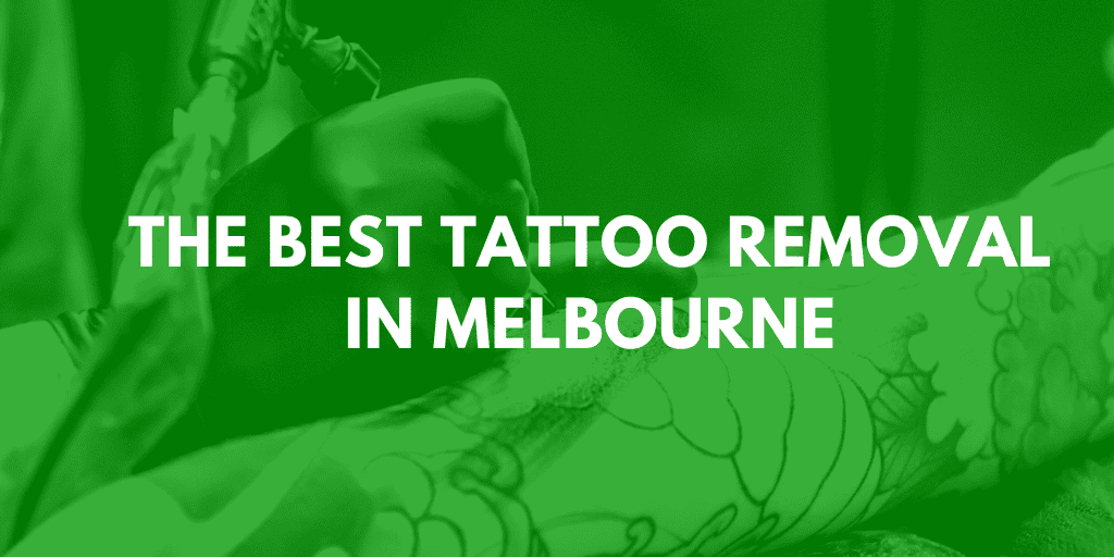 best tattoo removal melbourne banner